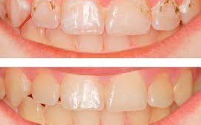 защитить наши зубы от кариеса!